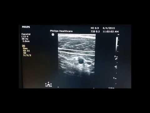 us guided popliteal nerve block