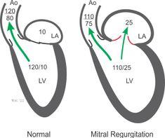 mitral valve prolapse syndrome dysautonomia survival guide